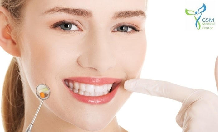 Zoom Teeth Whitening, Scaling, Cleaning & Polishing for only AED 475 at GSM Medical Center.