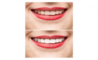 Smile without any hesitation! Avail the Zoom Teeth Whitening offered by Crown Medical Center RAK